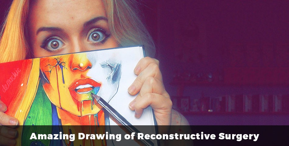 Amazing Drawing of Reconstructive Surgery